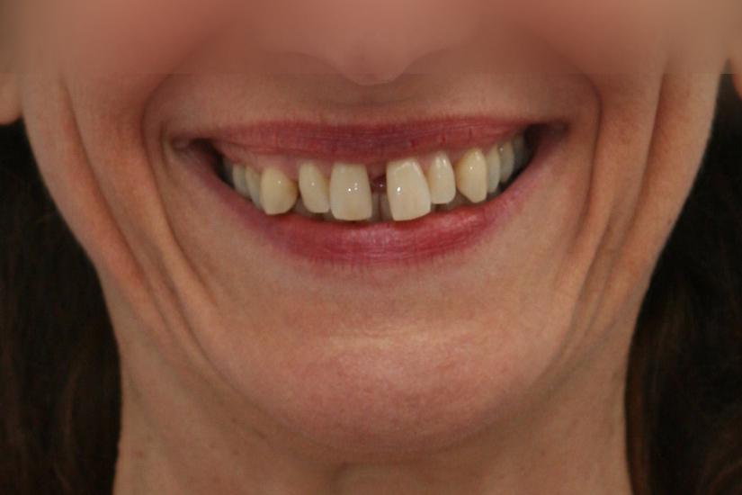 Sourire dents avant le traitement Invisalign