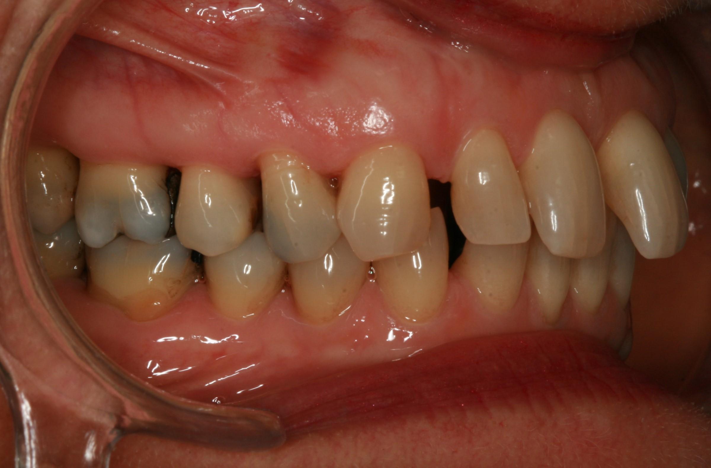 Dentition de trois quarts avant le soin Invisalign
