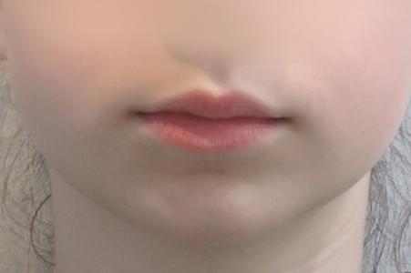 Fille de face avant le soin Invisalign