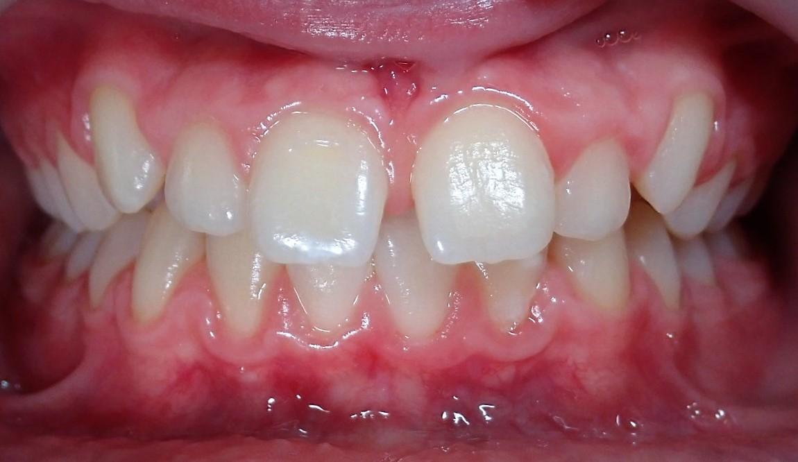 Dentition de face avant le traitement Invisalign