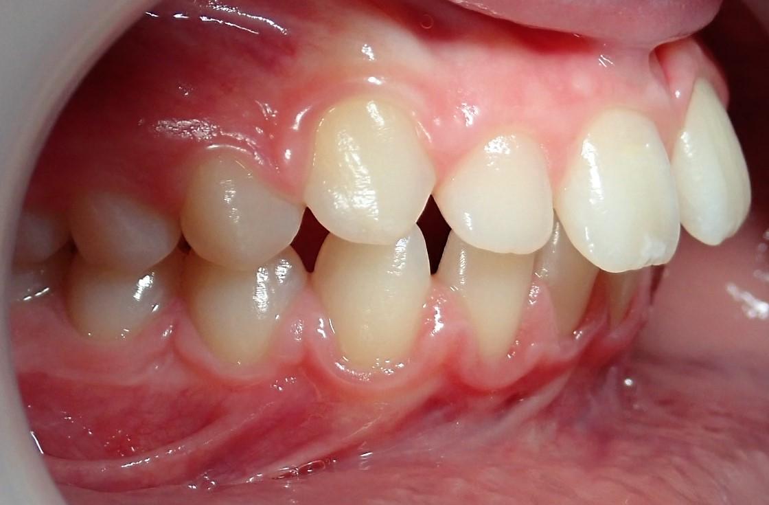 Dentition de trois quarts avant les soins 1