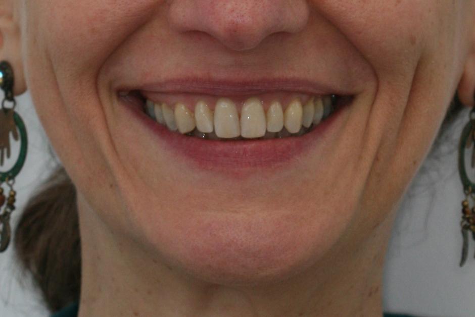 Dents après le traitement Invisalign adulte
