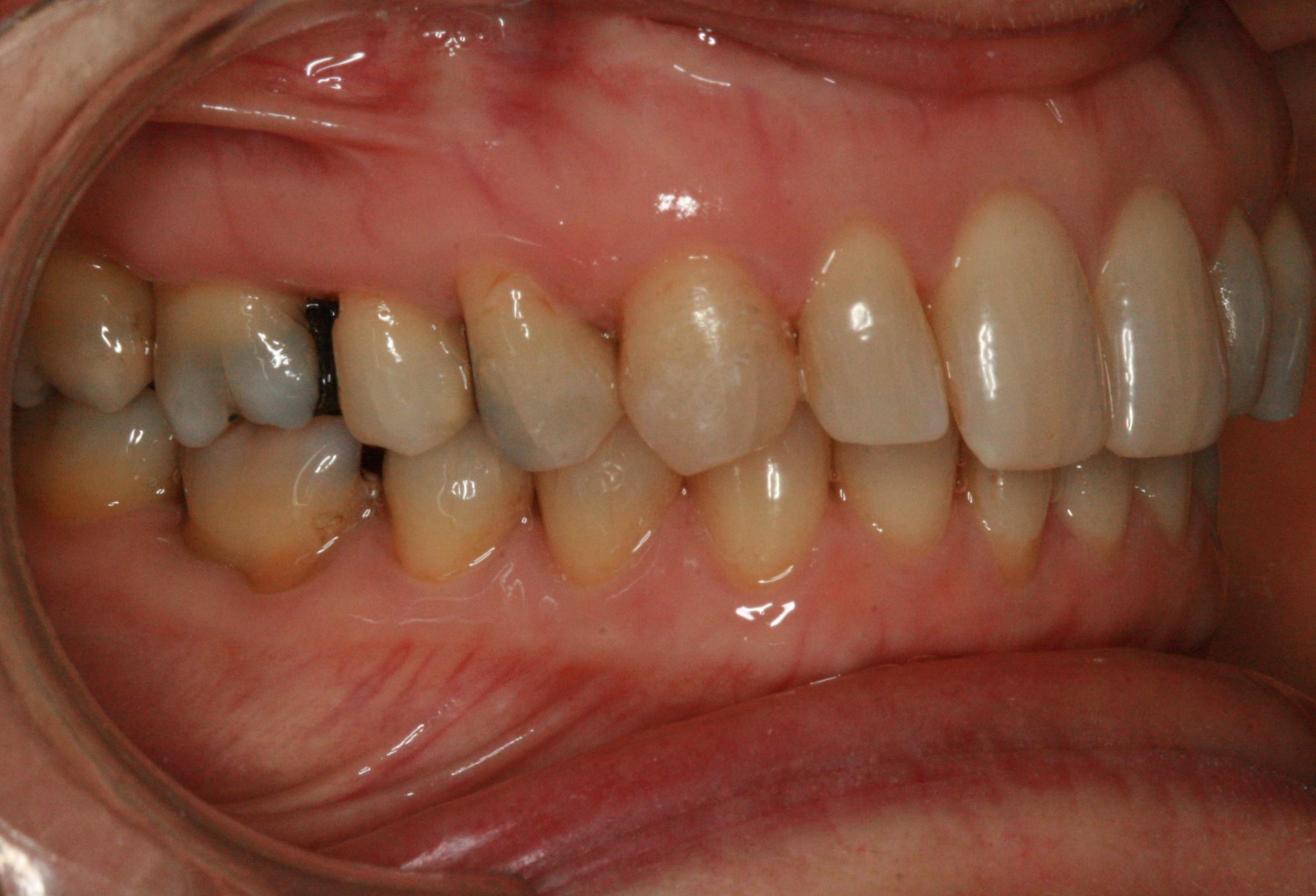 Dentition de trois quarts après Invisalign adulte