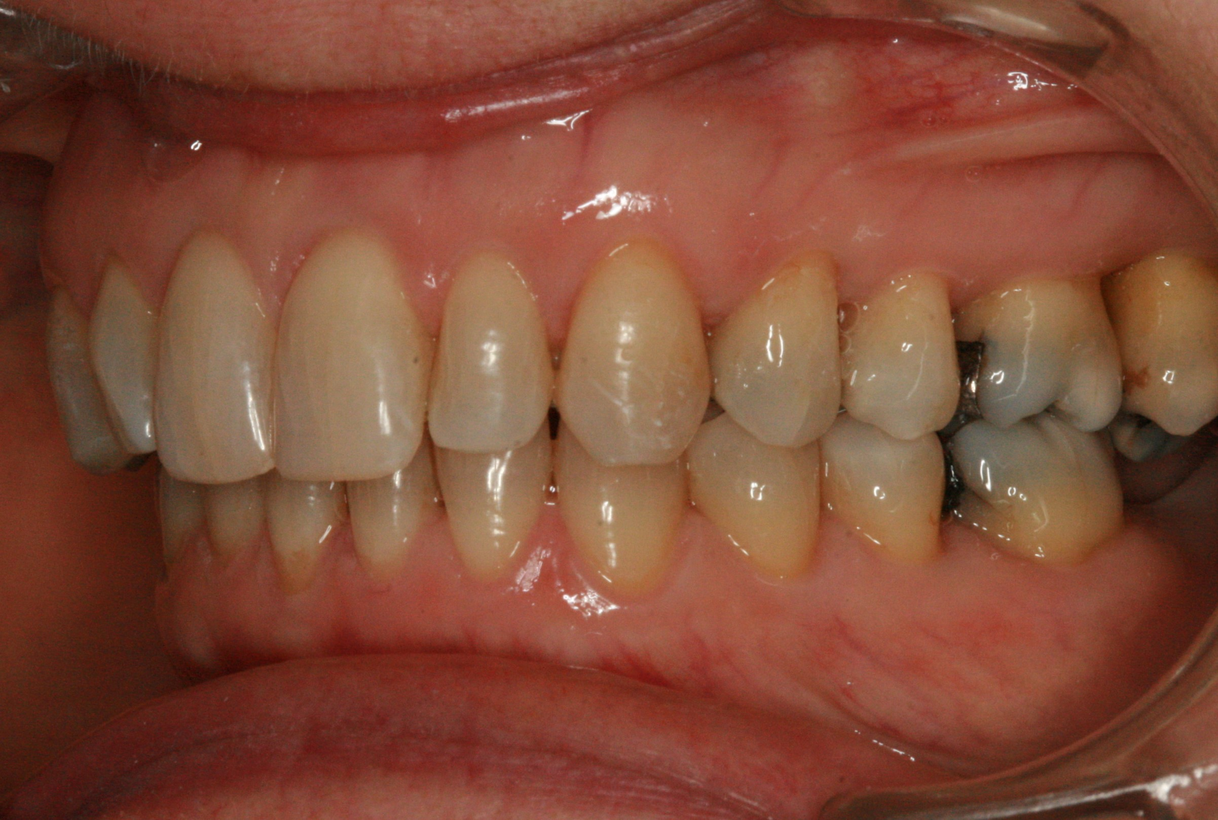 Dentition de trois quarts après Invisalign adulte 1