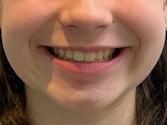 Sourire fille Invisalign après adolescent