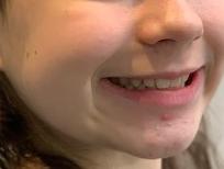 Résultat traitement Invisalign adolescent