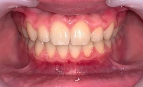 Dentition avec Ivisalign de face adolescent